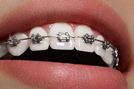 Ortodoncia metálica adultos